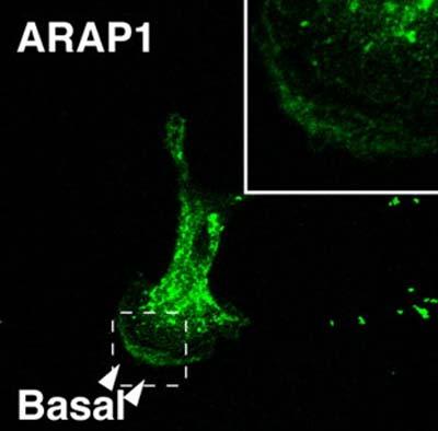 Immunocytochemistry/ Immunofluorescence - ARAP1 antibody (ab5912)