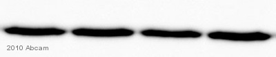 Western blot - Goat F(ab')2 polyclonal Secondary Antibody to Mouse IgM - mu chain (Biotin) (ab5929)