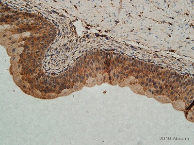 Immunohistochemistry (Formalin/PFA-fixed paraffin-embedded sections) - Sprouty 2 antibody - Aminoterminal end (ab50317)