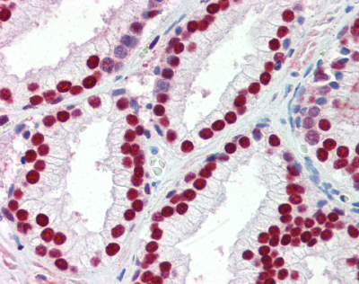 Immunohistochemistry (Formalin/PFA-fixed paraffin-embedded sections) - Anti-SSB antibody (ab50573)