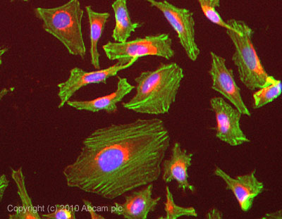 Immunocytochemistry/ Immunofluorescence-alpha Actinin antibody [MAC 276](ab50599)