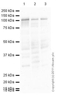 Western blot - Anti-alpha Actinin antibody [MAC 276] (ab50599)