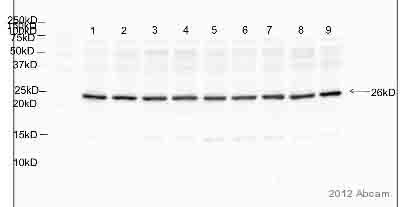Western blot - Anti-TIMP4 antibody [SB30c] (ab51207)