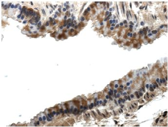 Immunohistochemistry (Formalin/PFA-fixed paraffin-embedded sections) - PLGF antibody [RM0010-8F09] (ab51654)