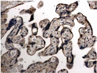 Immunohistochemistry (Formalin/PFA-fixed paraffin-embedded sections) - VEGFB 167 antibody [MM0008-7B43] (ab51867)