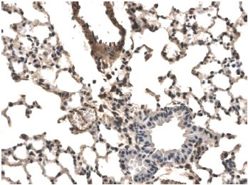 Immunohistochemistry (Formalin/PFA-fixed paraffin-embedded sections) - VEGF Receptor 1 antibody [RM0001-5F13] (ab51872)