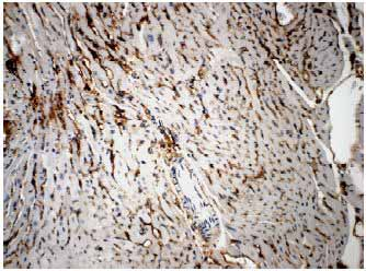 Immunohistochemistry (Formalin/PFA-fixed paraffin-embedded sections) - VEGF Receptor 3 antibody [RM0003-5F63] (ab51874)