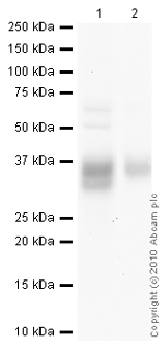 Western blot - Surfactant Protein A antibody [6F10] (ab51891)