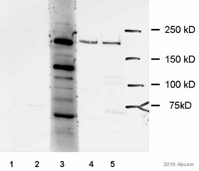 Western blot - KALRN antibody (ab52012)