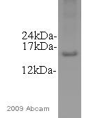 Western blot - alpha Synuclein antibody (ab52168)