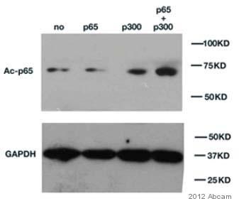 Western blot - Anti-NF-kB p65 (acetyl K310) antibody (ab52175)