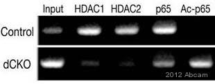ChIP - Anti-NF-kB p65 (acetyl K310) antibody (ab52175)