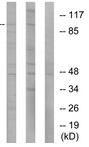 Western blot - Anti-Ionotropic Glutamate receptor 2 antibody (ab52176)