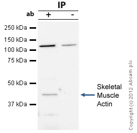 Immunoprecipitation - Anti-skeletal muscle Actin antibody (ab52218)