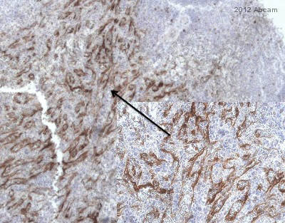 Immunohistochemistry (Formalin/PFA-fixed paraffin-embedded sections) - Anti-HLA G antibody [4H84] (ab52455)