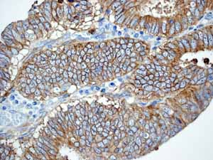 Immunohistochemistry (Formalin/PFA-fixed paraffin-embedded sections)-Anti-EGFR antibody [EP38Y](ab52894)