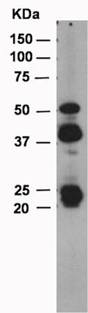 Western blot - MMP12 antibody [EP1261Y] - Carboxyterminal end (ab52897)