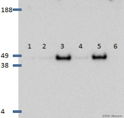 Western blot - Smad3 (phospho S423 + S425) antibody [EP823Y] (ab52903)