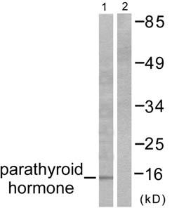 Western blot - Parathyroid Hormone antibody (ab53040)
