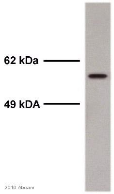 Western blot - Smad2 (phospho S467) antibody (ab53100)