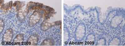 Immunohistochemistry (Formalin/PFA-fixed paraffin-embedded sections) - Claudin 4 antibody (ab53156)