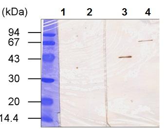 Western blot - Transglutaminase 3 antibody [B5D] (ab53236)