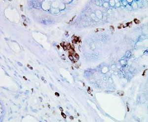 Immunohistochemistry (Formalin/PFA-fixed paraffin-embedded sections) - Hsp70 + Hsc70 antibody [BB70] (ab53496)