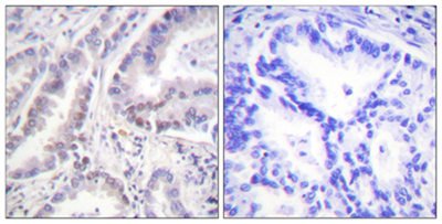 Immunohistochemistry (Formalin/PFA-fixed paraffin-embedded sections) - Cdc6 antibody (ab53696)