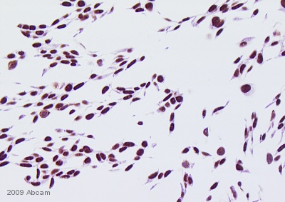 Immunohistochemistry (Formalin/PFA-fixed paraffin-embedded sections) - DNA PKcs antibody (ab53701)