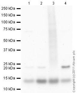 Western blot - Anti-Stefin B antibody (ab53725)