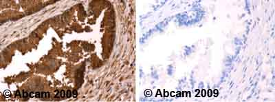 Immunohistochemistry (Formalin/PFA-fixed paraffin-embedded sections)-Prostate Specific Antigen antibody(ab53774)