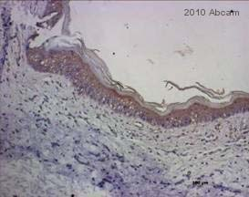 Immunohistochemistry (Formalin/PFA-fixed paraffin-embedded sections) - Hyaluronic acid antibody (ab53842)