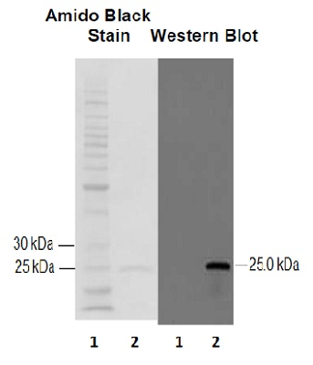 Western blot - Anti-GST3 / GST pi antibody (ab53943)