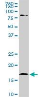 Western blot - Cofilin antibody (ab54532)