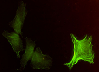 Immunocytochemistry/ Immunofluorescence - alpha smooth muscle Actin antibody (ab54723)