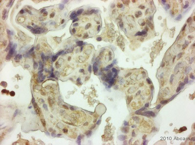 Immunohistochemistry (Formalin/PFA-fixed paraffin-embedded sections) - Egr1 antibody [mAbcam55160] (ab55160)