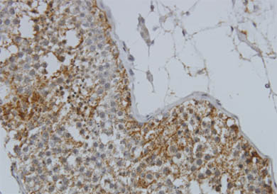 Immunohistochemistry (Formalin/PFA-fixed paraffin-embedded sections) - Glycogenin 1 antibody (ab55221)