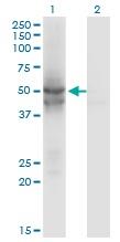 Western blot - Anti-IDH2 antibody (ab55271)