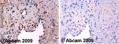Immunohistochemistry (Formalin/PFA-fixed paraffin-embedded sections)-Ku80 antibody(ab55408)
