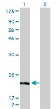 Western blot - MYL5 antibody (ab55471)