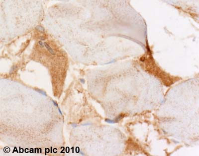 Immunohistochemistry (Formalin/PFA-fixed paraffin-embedded sections) - NBR1 antibody (ab55474)
