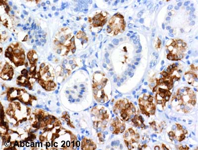 Immunohistochemistry (Formalin/PFA-fixed paraffin-embedded sections)-MUC7 antibody(ab55542)