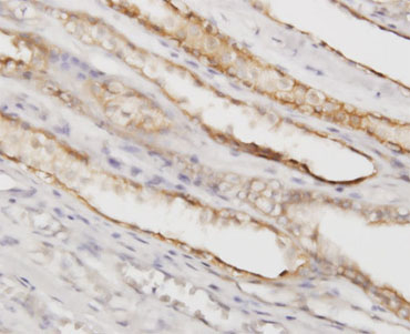 Immunohistochemistry (Formalin/PFA-fixed paraffin-embedded sections)-PGGT1B antibody(ab55615)