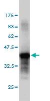 Western blot - PTPRS antibody (ab55640)