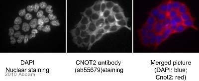 Immunocytochemistry/ Immunofluorescence - CNOT2 antibody (ab55679)