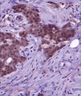 Immunohistochemistry (Formalin/PFA-fixed paraffin-embedded sections) - Anti-hHR23A antibody (ab55725)
