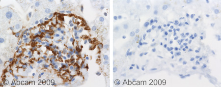 Immunohistochemistry (Formalin/PFA-fixed paraffin-embedded sections) - C5b-9 antibody (ab55811)