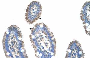 Immunohistochemistry (Formalin/PFA-fixed paraffin-embedded sections)-Anti-SLC22A1 antibody(ab55916)