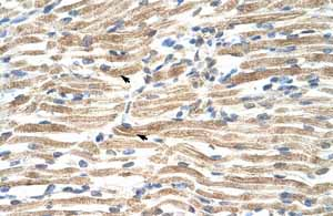 Immunohistochemistry (Formalin/PFA-fixed paraffin-embedded sections)-Anti-YY1 associated factor 2 antibody(ab55976)