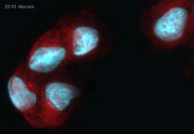 Immunocytochemistry/ Immunofluorescence - TRPM3 antibody (ab56171)